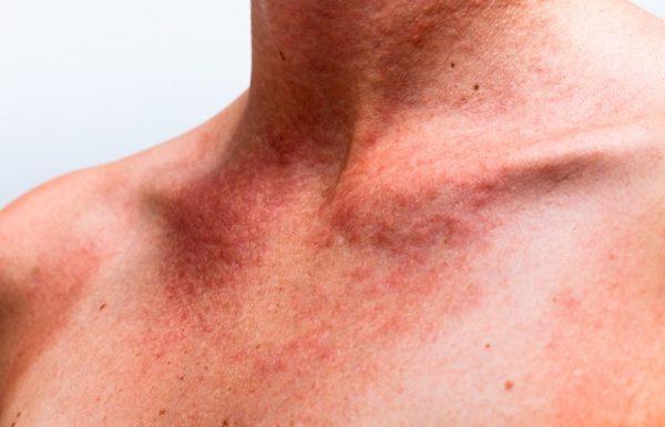 מחלות עור זיהומיות